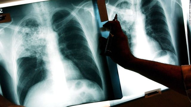 Светски ден за борба против туберкулоза, имаме континуиран пад на бројот на заболени