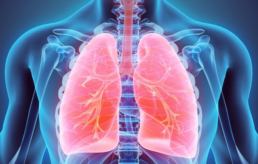 Рак на бели дробови- овие симптоми не треба да ги игнорирате