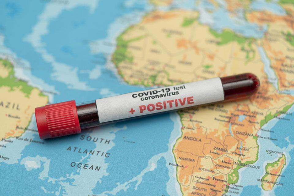 СЗО: Во Африка над 3,4 милиони заразени со коронавирус