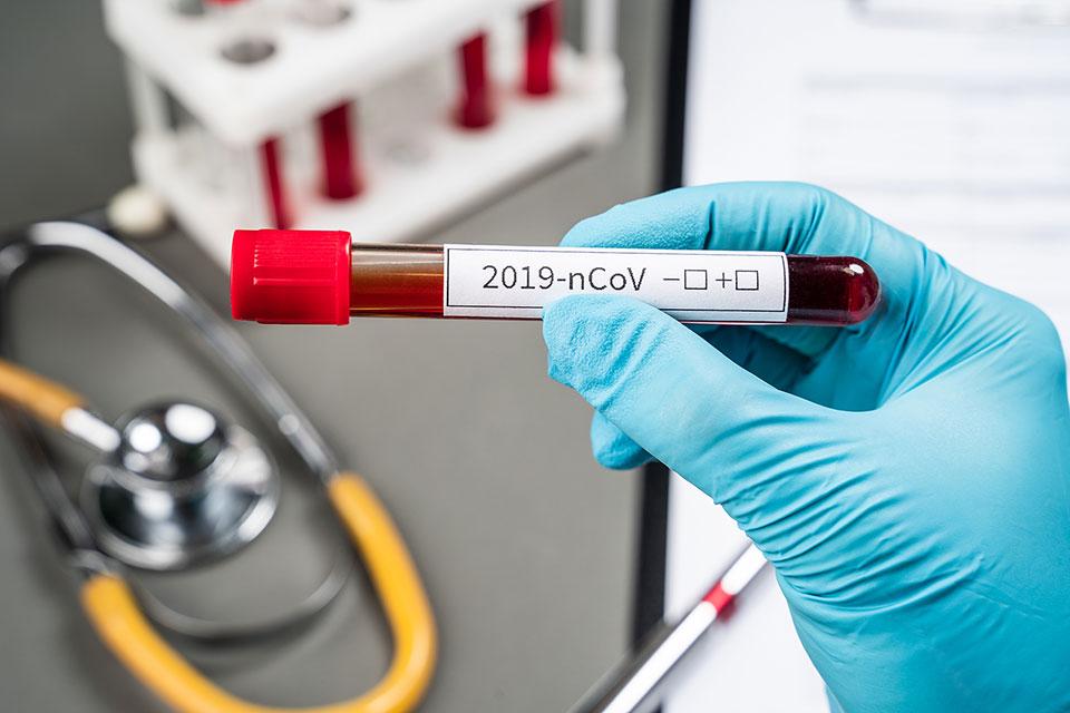 Двајца починати од коронавирус во Тетово, вкупно 30 заразени