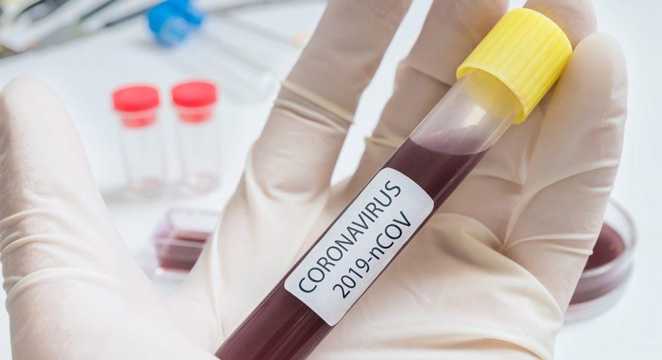 Маж излекуван од коронавирус со крвна плазма