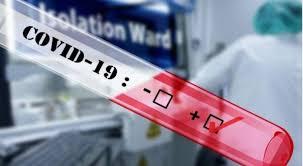 Над 100 милиони луѓе во светот заразени од Ковид-19