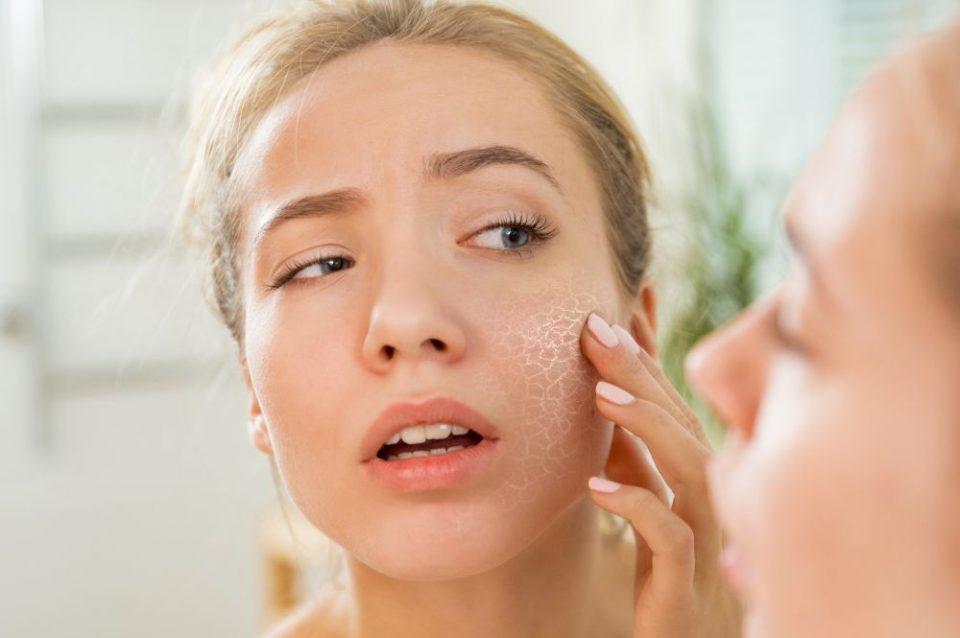 Совети за кожата и мозолчињата по летото