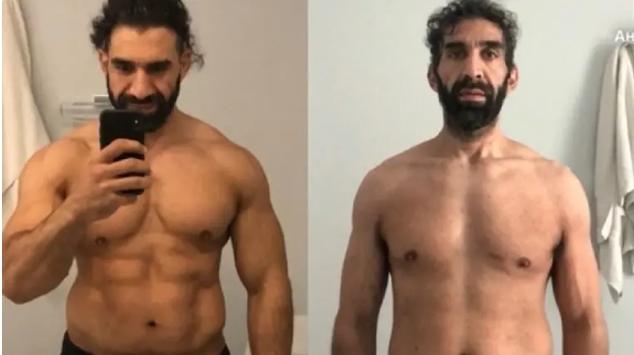 ФОТО: Шокантна трансформација на познат спортист заболен од корона