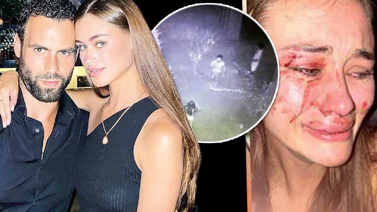 """Убавата манекенка објавила фотографија со крваво лице:""""Не сакам да молчам, не претепаа!"""""""