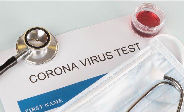 Денеска ќе се одлучува дали да се воведе PCR тест за патниците од соседството кои транзитираат низ државава
