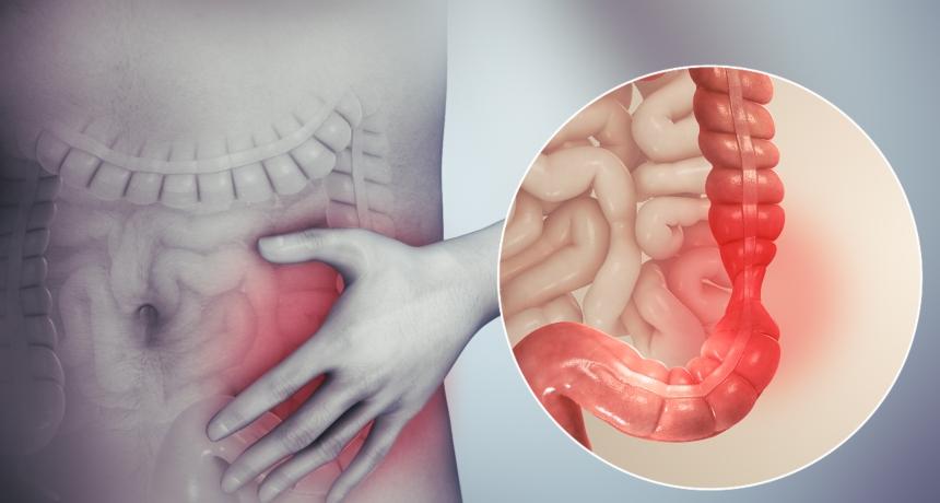 Проблем со дебелото црево: Што да направите во домашни услови и кога да посетите лекар