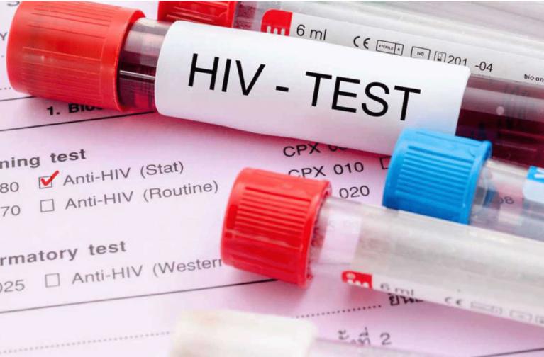 Епидемијата со Ковид-19 негативно влијае врз раното дијагностицирање на ХИВ