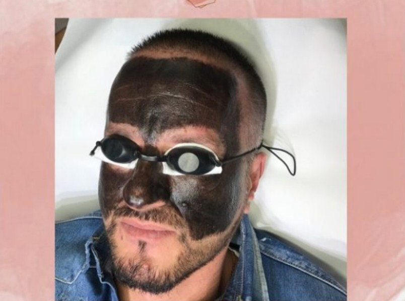 """Магија за вашата кожа – Карбон ласерски пилинг во """"Beautyacademy"""""""