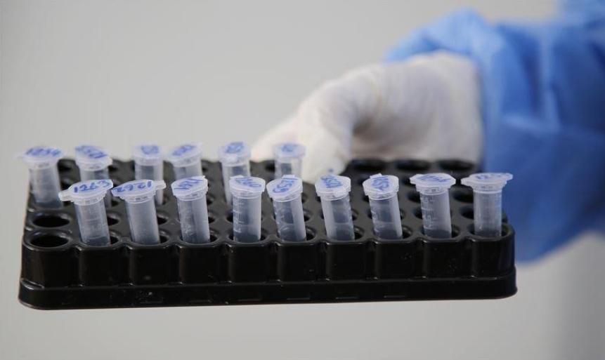 Филипче: 70% од новодијагностицираните случаи се пациенти кои се заразени со британскиот сој на вирусот