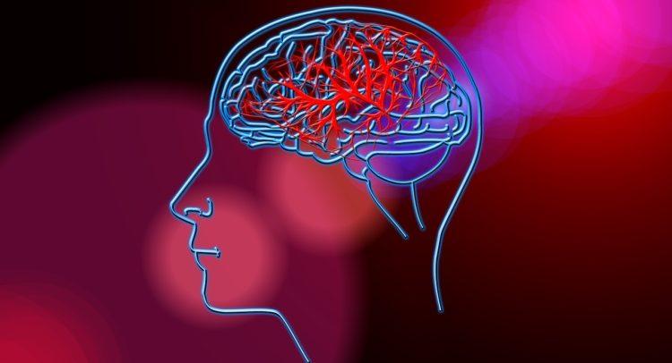 Ова се најчестите причини за мозочен удар – бидете внимателни!