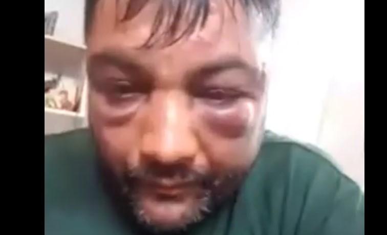 Се огласи струмичанецот кој беше брутално нападнат: Обезбедувањето на Заев ме тепаше! (ВИДЕО)