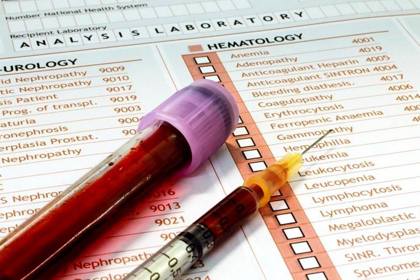 7 тестови кои неопходно е да ги правите еднаш годишно: Вака болестите се откриваат во почетна фаза, а крвта покажува сè