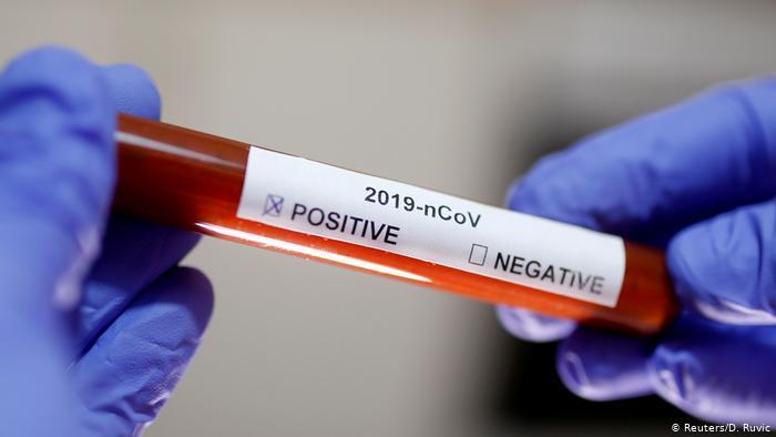 Позитивни на коронавирус од тетовско си излегувале од дома