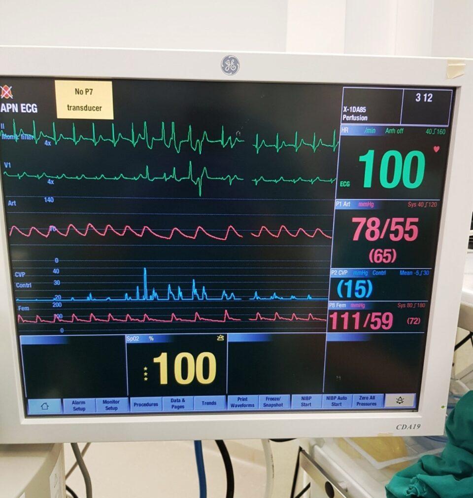 Завршена трансплантацијата: Рано утрово срцето на 44 годишната пациентка повторно чука