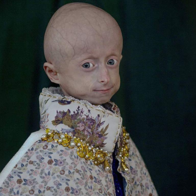 Десетгодишно девојче во Украина почина од старост