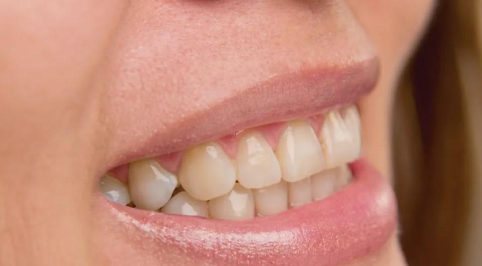 Знаете дека цигарите и кафето се штетни за забите, но дознајте зошто треба да внимавате и со водата